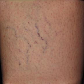 asclera-before